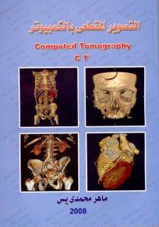 التصوير المقطعي  بالكمبيوتر  CT Computed Tomography