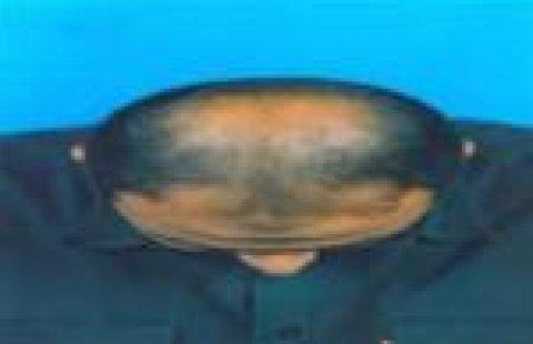 جروهير لانبات الشعر والصلع للرجال والسيدات