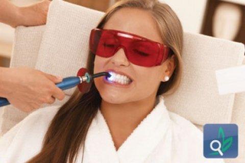 مركز زراعة وتبييض الاسنان بالليزر