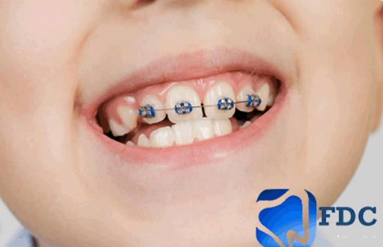 تجميل و تقويم الأسنان
