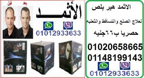 الاثمد هير بلص الاصلى لعلاج الصلع والتساقط حصريا ب 66جنيه