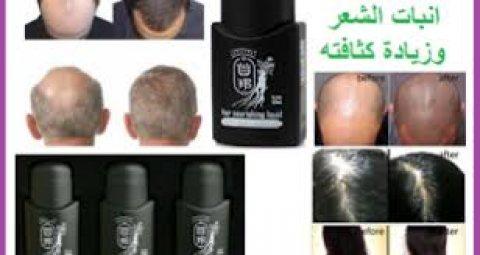 سن برست لعلاج تساقط الشعر  وزيادة كثافته