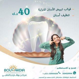قوالب تبييض الأسنان المنزلية | عيادة طب وتجميل الأسنان- 96555452994