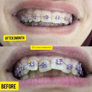فوائد التقويم للأسنان