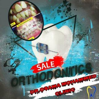 اسعار تقويم الأسنان